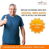 Dental Tourism in India, 70% Savings On Treatments in Hyderabad
